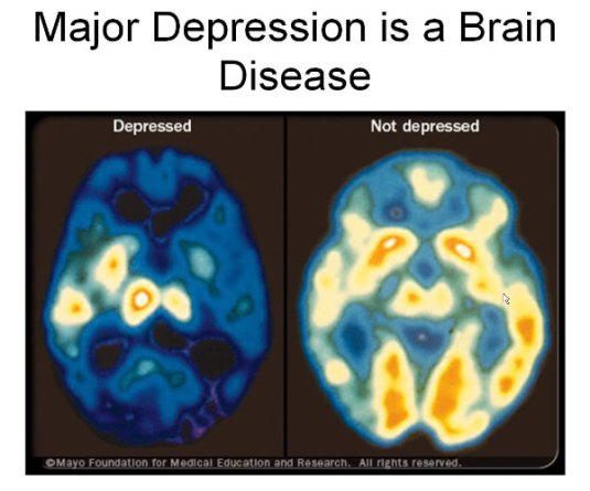 clinical-depression-treatment